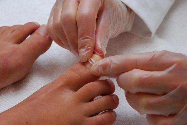 Белизна от грибка ногтей на руках